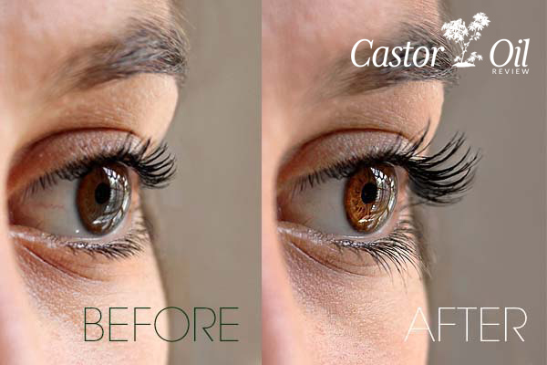 Before and after photos of eyelashes