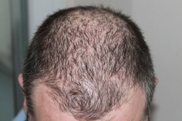 """""""Male Pattern Baldness"""" - Man's hair with M-shape at the forehead."""